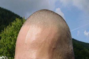 Egy hajszálon múlik a férfiasság?