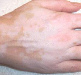 Vitiligo-bőrbetegség