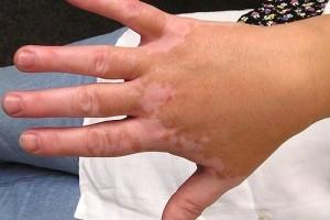 Mit tehetünk a fehér foltok (vitiligo) ellen?
