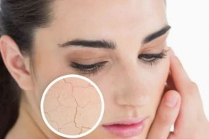 Hogyan kezelhető a vízhiányos bőr?