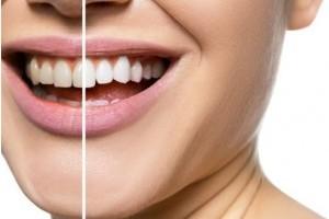 Hogyan legyenek szép fehérek a fogaid fogkárosodás nélkül?